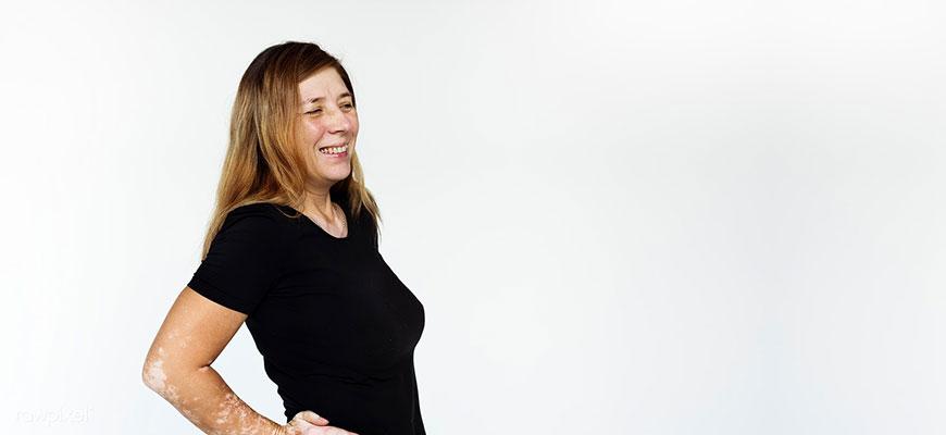 Как лечить витилиго? Причины и симптомы появления