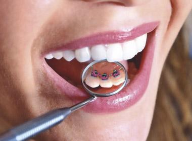 Как предупредить проблемы с зубами?