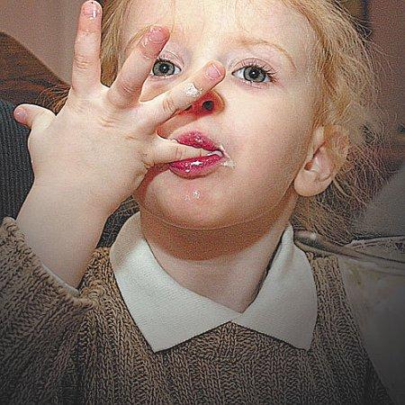 Паразиты в детском организме